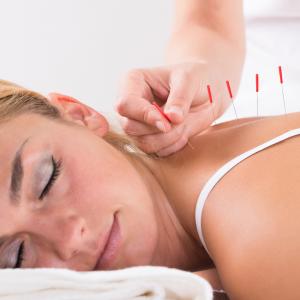 dry needling agulhamento a seco dor